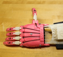 Global Prosthetic Project Making... Tuesday, July 21, 2015